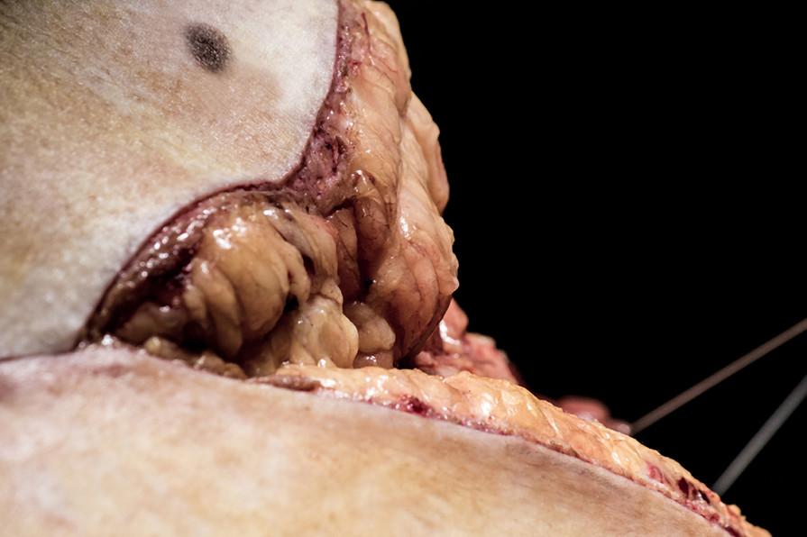 Implant d'une hanche