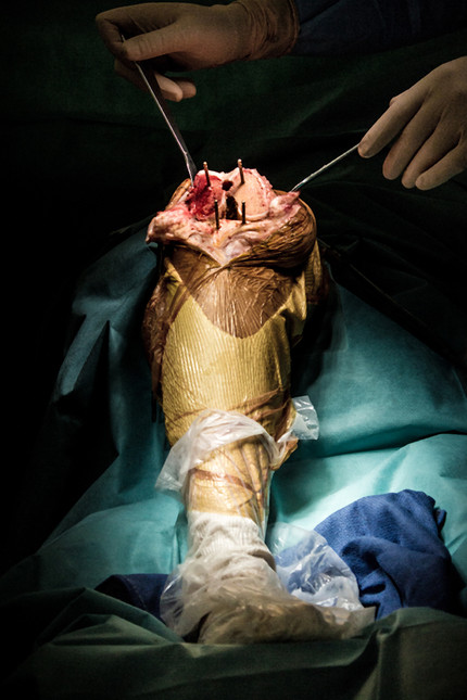 Implant du genou
