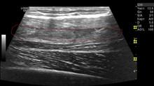 Травматическое повреждение четырехглавой мышцы бедра