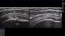 Частичное повреждение сухожилия надостной мышцы и посттравматический тендовагинит сухожилия длинной