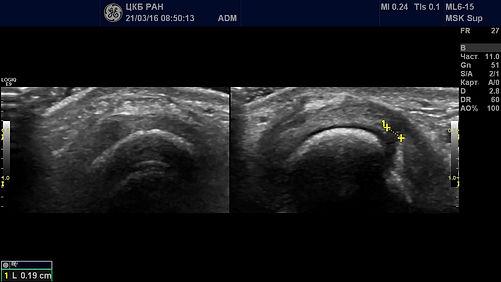 разрыв коллатеральной связки пястно-фалангового сустава