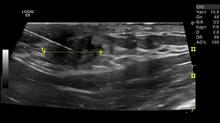 Ультразвуковая навигация при проведении биопсии