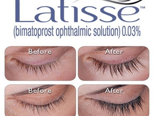 What is Latisse?