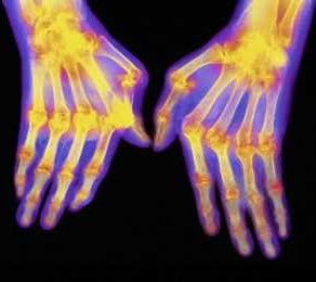 Uzrok reumatoidnog artritisa?