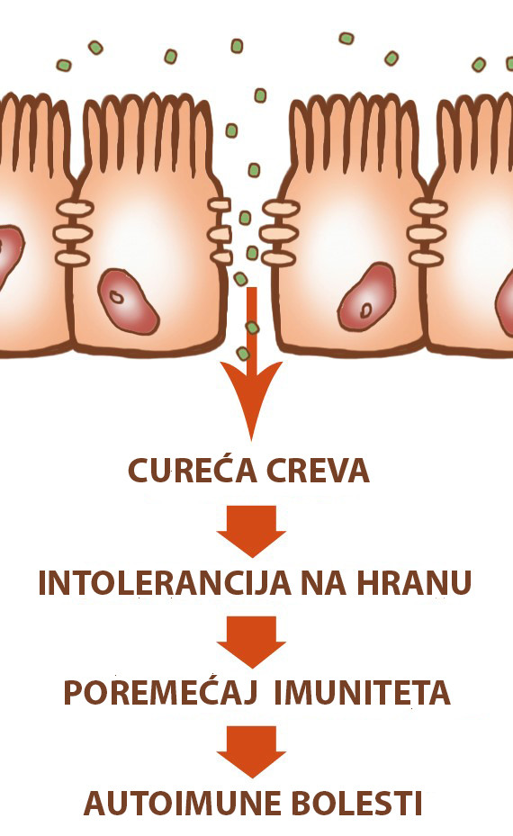 sindrom propusnih creva