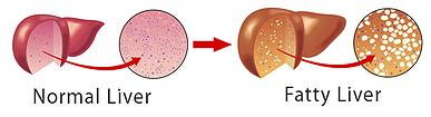 masna jetra lchf