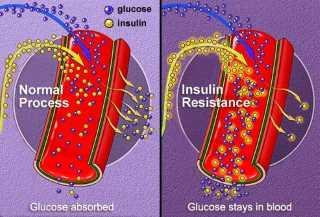 insulinska rezistancija