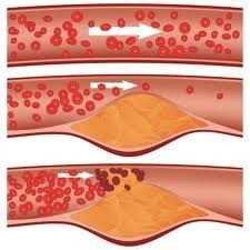 ateroskleroza lchf