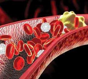 Ateroskleroza - faktori rizika