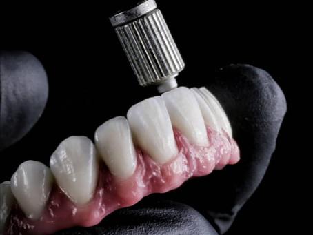 Implantes o puentes dentales. ¿Qué es mejor?