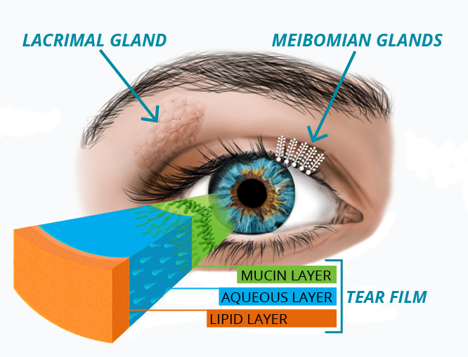 Dry Eye Diagram