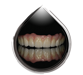 Full Zirconia Fixed Denture