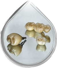 Full Contour Zirconia Crown Implant