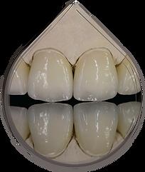 Emax Multi Veneers