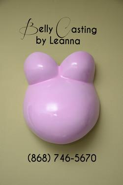 Rohan's sweet pink cast.