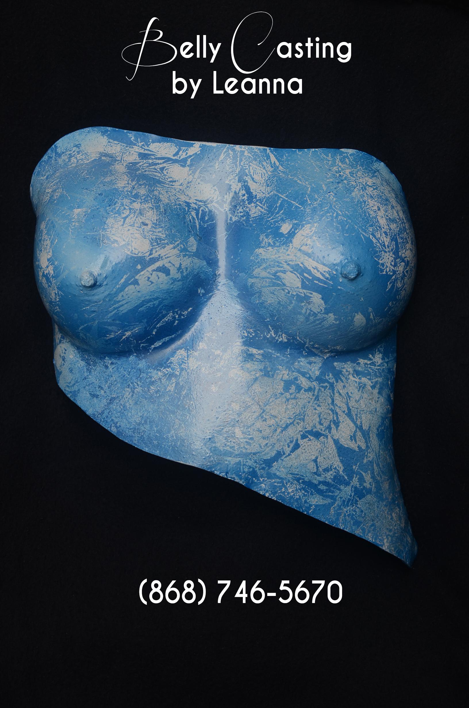 Breast Cast