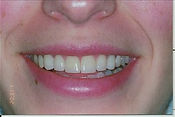 Veneers after.jpeg