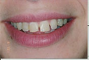 Veneers before.jpeg