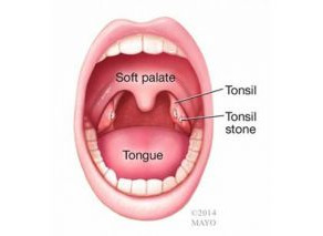 Tonsil Terror
