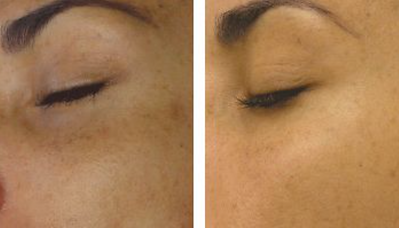 Before and After Hyper Pigmentation treatment to the face