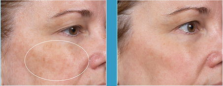 Skin Brightening before and after