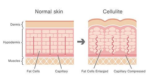 Litfique Graphic of Cellulite