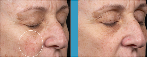 Before and After Liftique skin brightening
