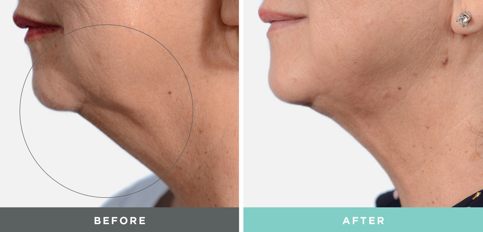 A Before and After skin tightening treatment