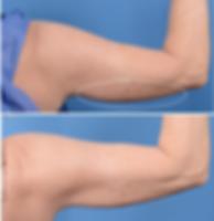 Liftique Arm Sculpting Results
