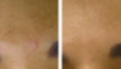 Beore and After treatment to the Sun Spots on the face