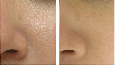Before and Aftr Pore Reduction