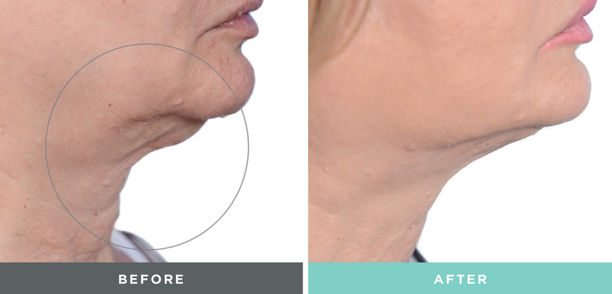 A Liftique before and after