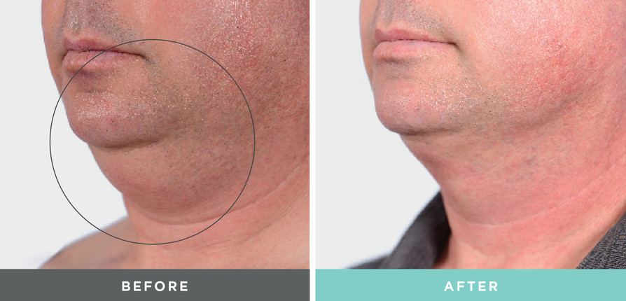 A before and after liftique treatment