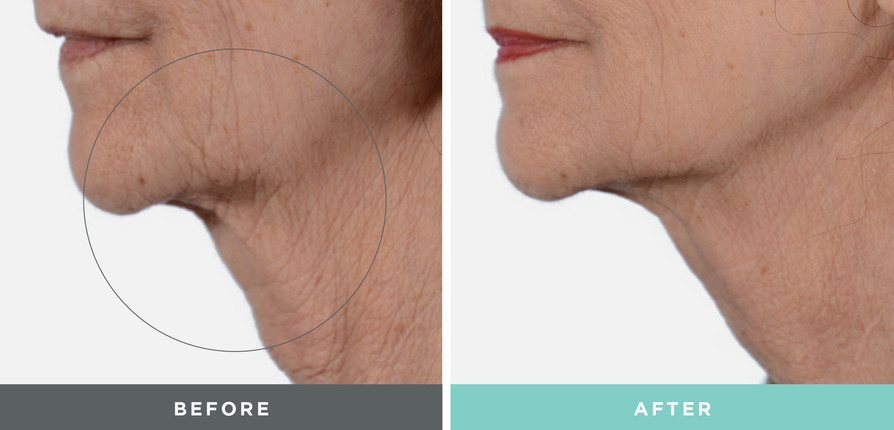 A before and after treatment by Liftique