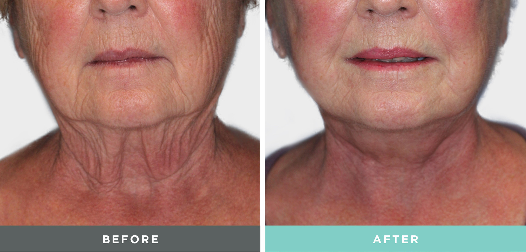 Liftique Facelift Before and After.jpg