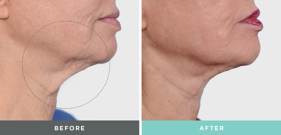 A Before and After done to a woman