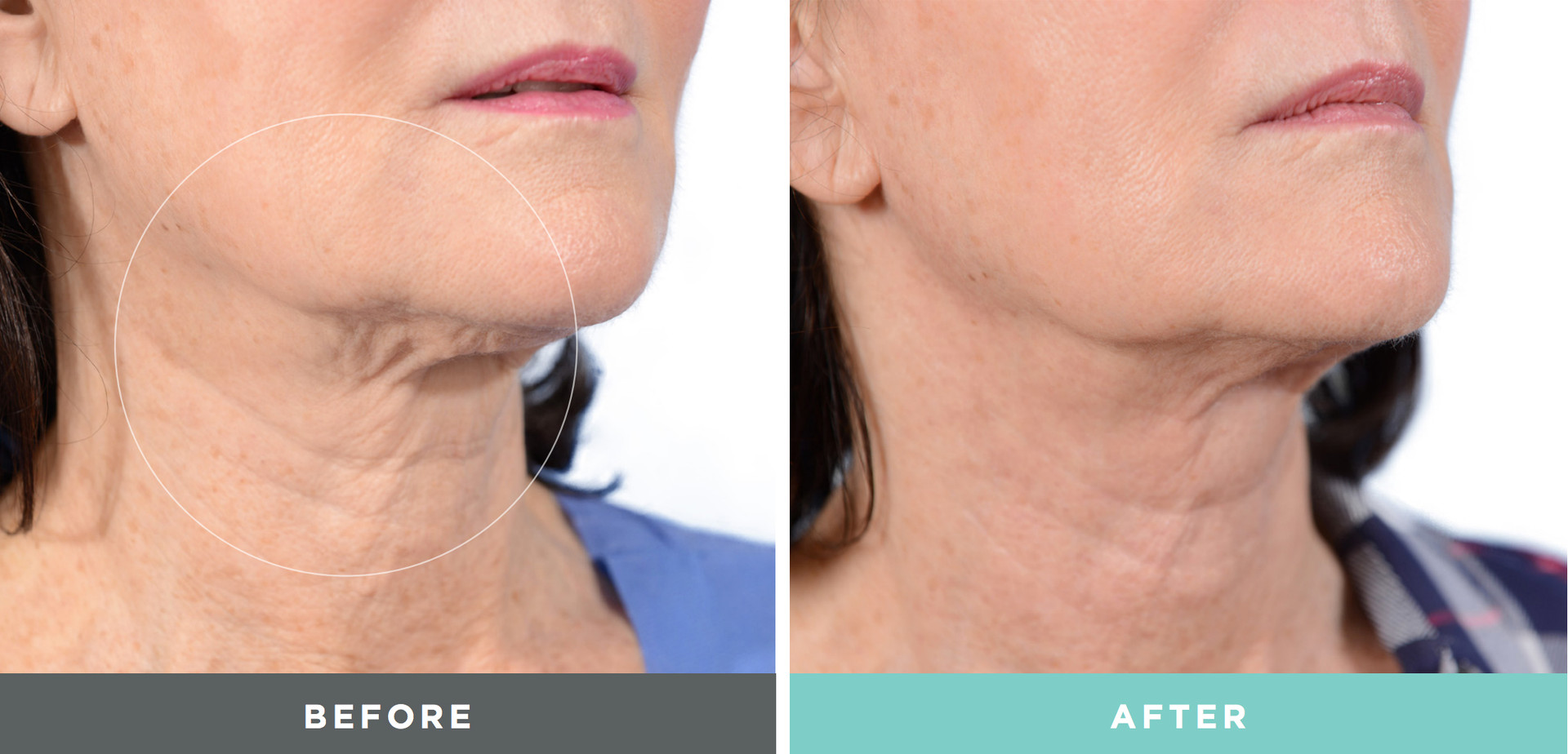 A before and After done to a woman by Liftique
