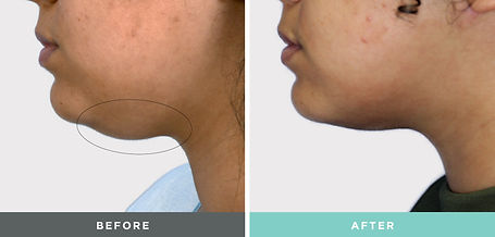 Liftique Before and After treatment to the chin