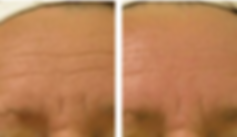 Before and After Fine Line Treatment
