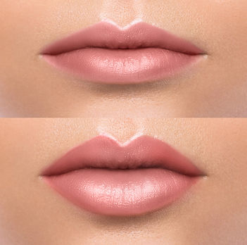 Before and after treatment done to the lips