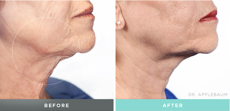 Before and after Liftique procedure to the neck