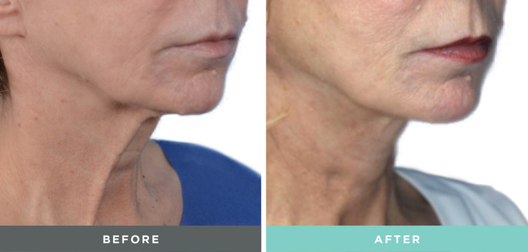 Liftique Before and After