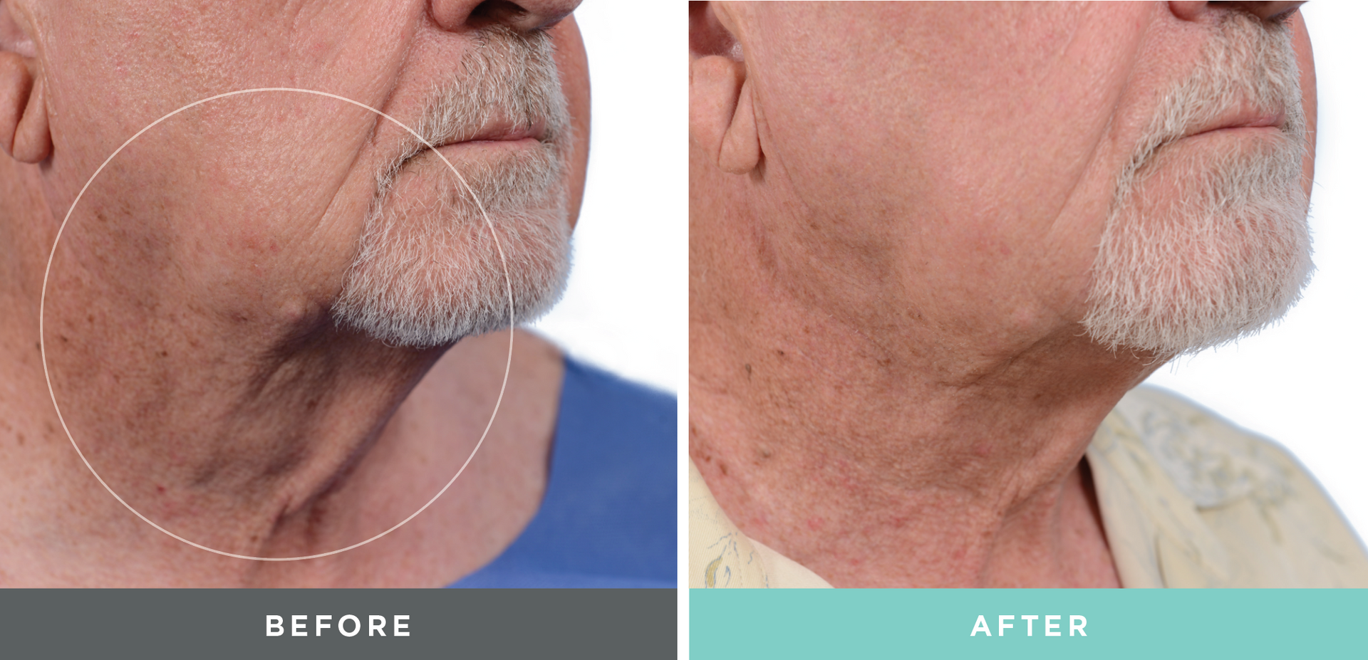A before and after treatment done by Liftique