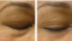 Before and After Eye Treatment