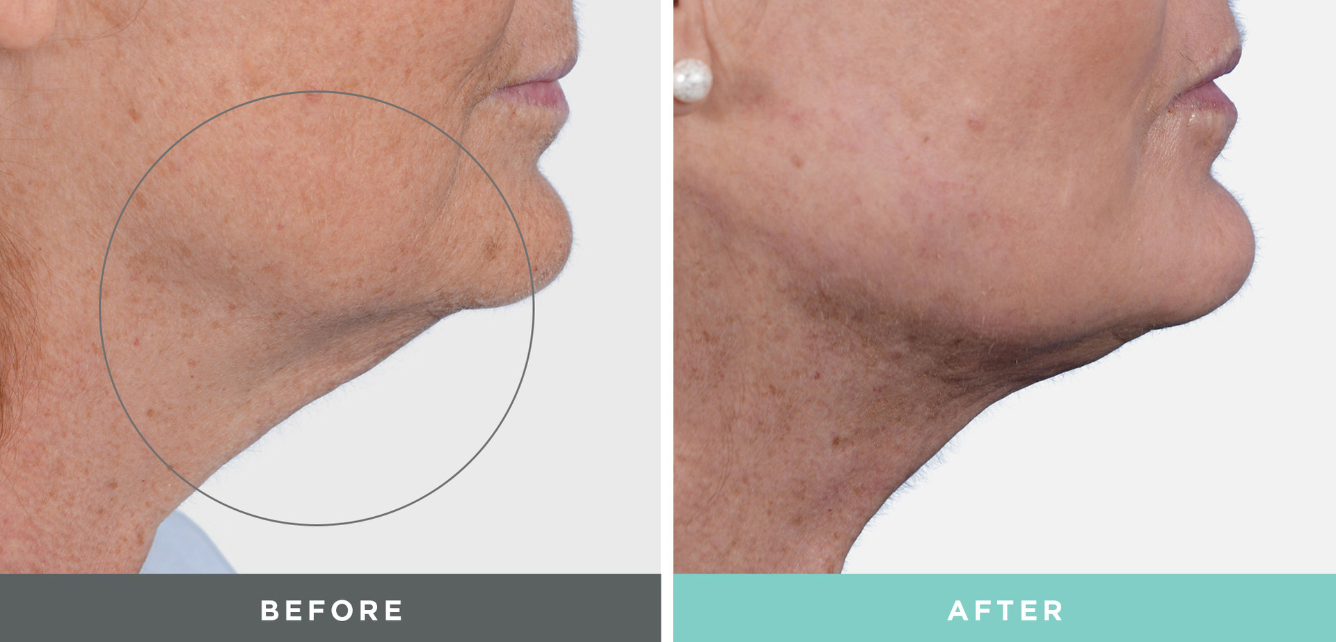 A Before and After on a woman's chin