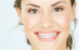 Orthodontic treatment - Vibrant Smiles Dentistry