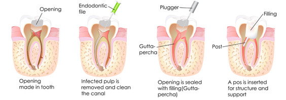 Root Canal In North Richland Hills