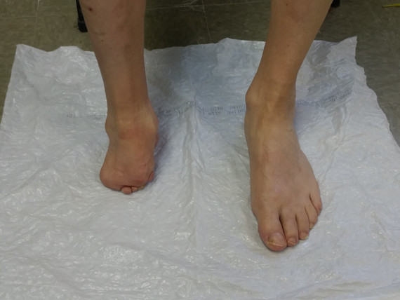 walk in foot patient