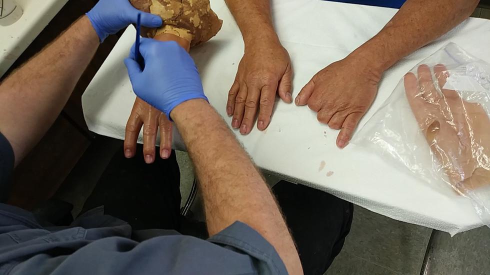 walk in hand patient details