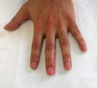 walk in patient (middle fingure)